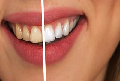 Естетична реставрація зубів Черкаси