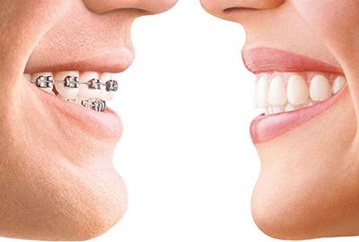Ортодонт (ортодонтия) в Черкассах